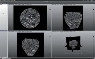 Interface de travail du logiciel SmithDR en cours d'exploitation