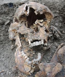 Crâne et dentier