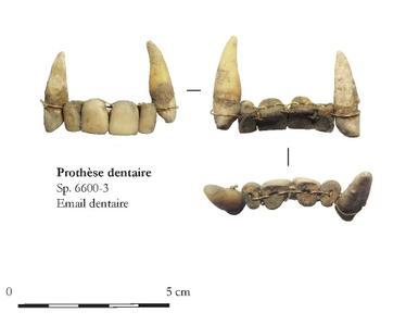 Détail du dentier